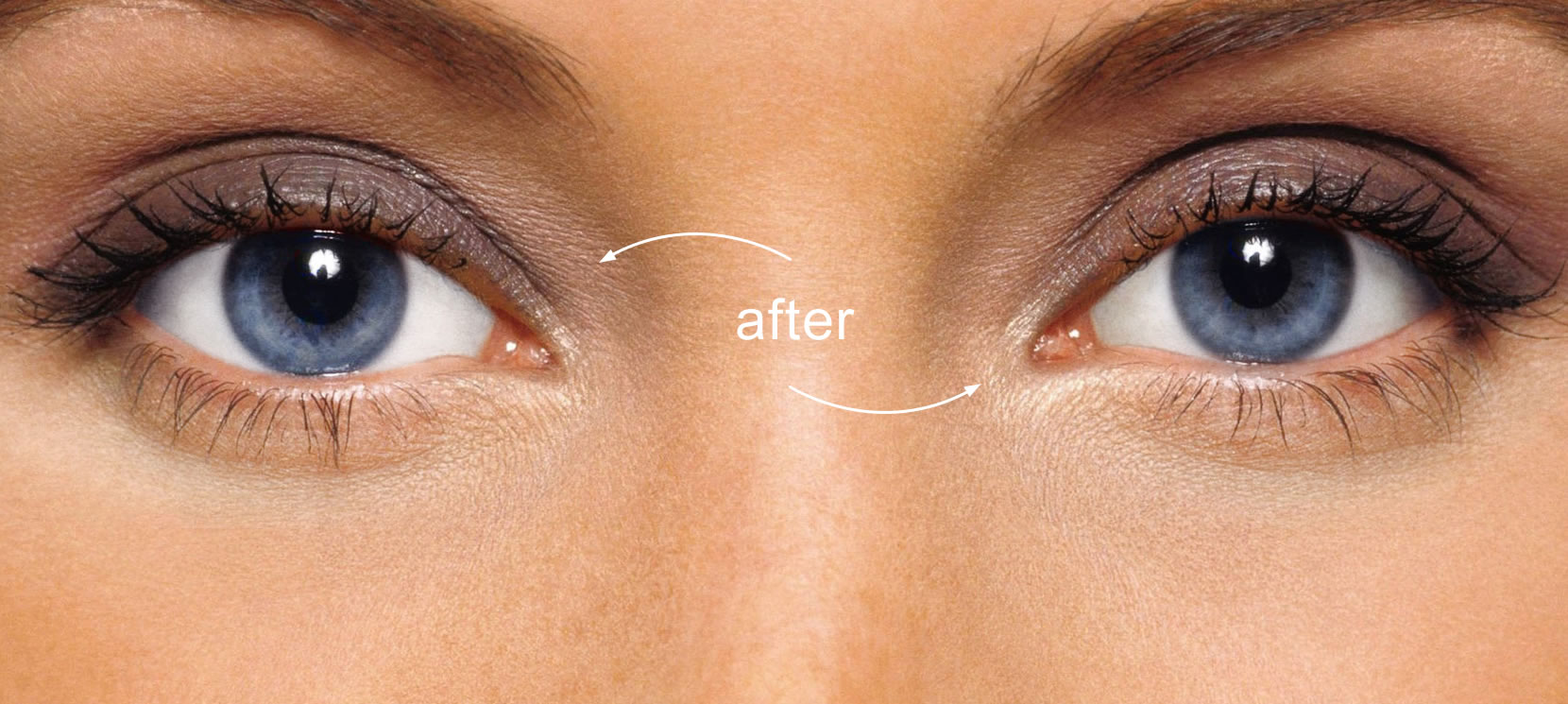 Before online face retouch: red eye effect and yellowish eye whites.