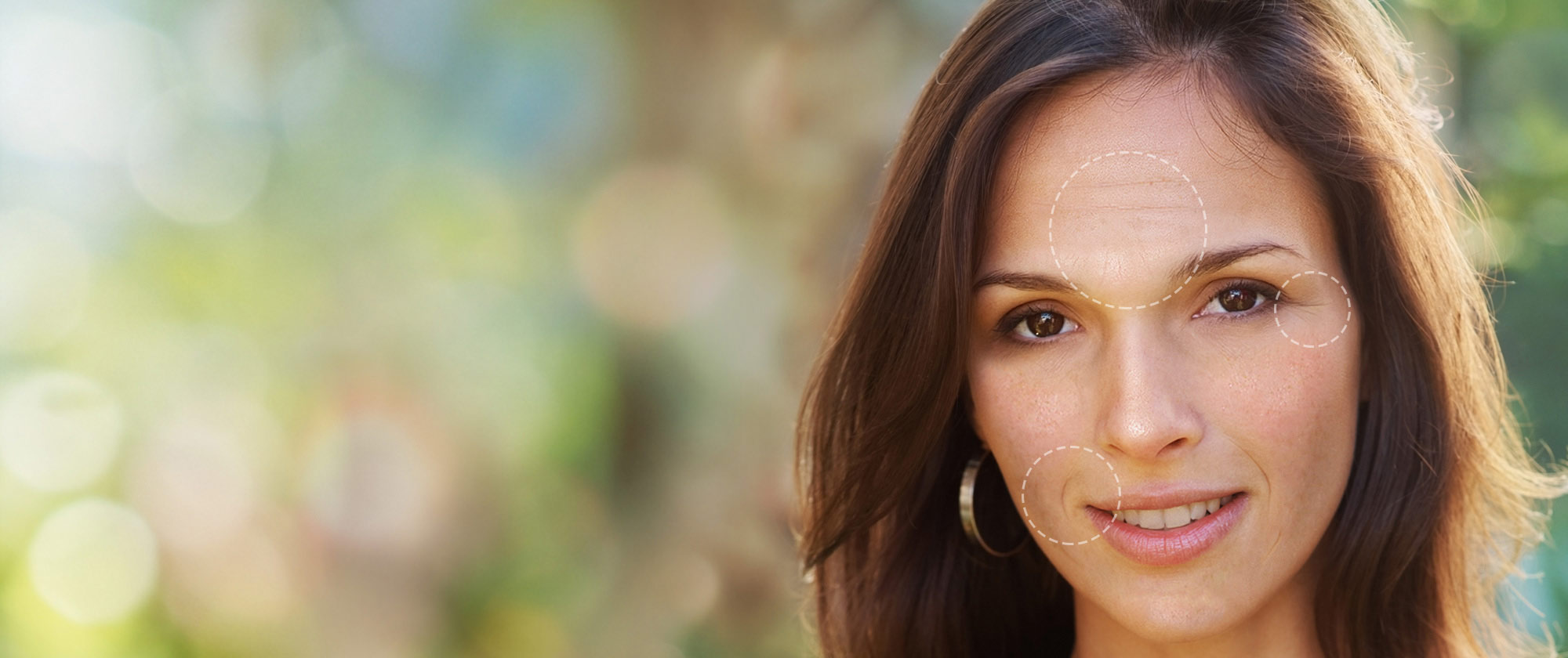 Woman's face with fine lines, wrinkles on forehead & uneven skin tone.